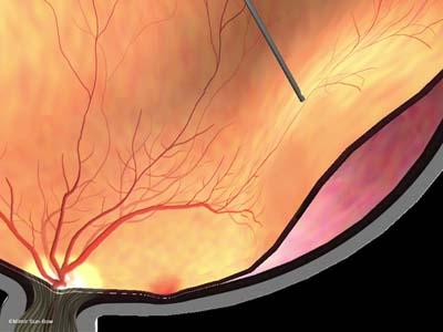 線維血管膜除去と網膜剥離4