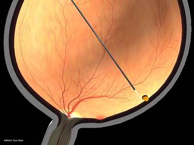 網膜の円孔2