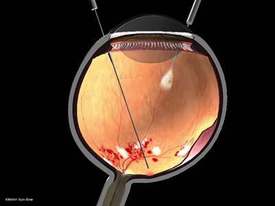 網膜剥離5