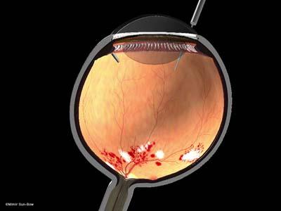 網膜剥離6
