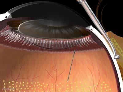 周辺部の眼内光凝固術1