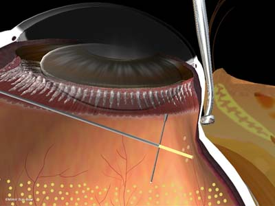 周辺部の眼内光凝固術2