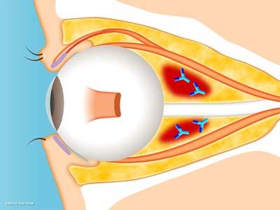 眼球突出(脂肪の腫れ)