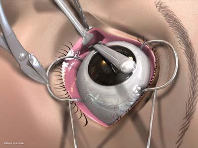経結膜の眼窩減圧術3