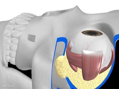 経上顎洞の眼窩減圧術5