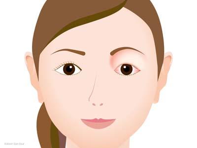 甲状腺眼症の症状